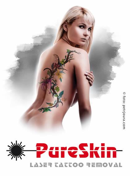 Odstranění tetování se slevou
